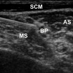 is_ultrasound_image-copy