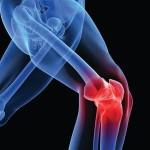 Knee.Pain