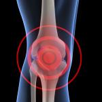 Knee-pain 2